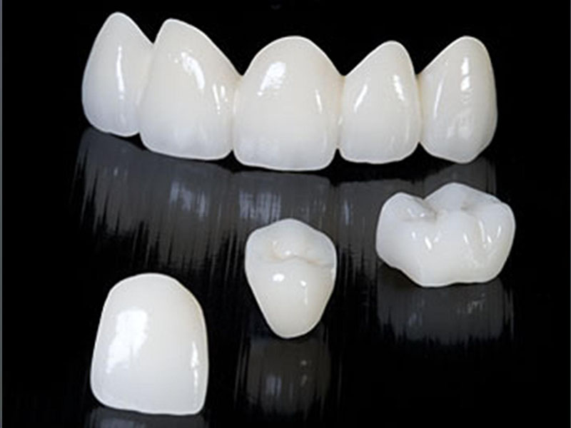 Zirconiu coronita dentara
