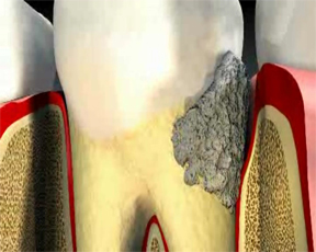 Zubnoi-kameni