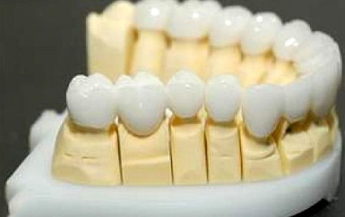Zirconiu coroana dentara